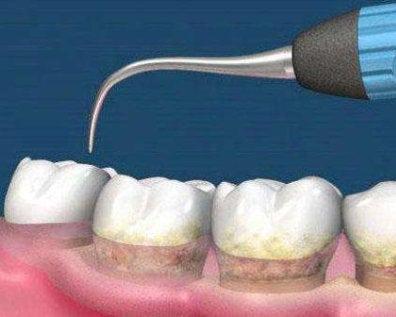 Зубной налет и зубной камень